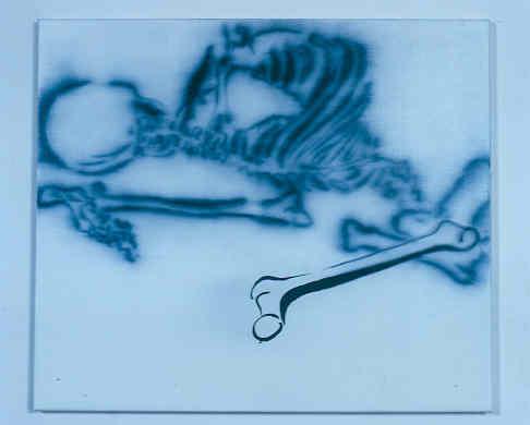Knochen (Becken)